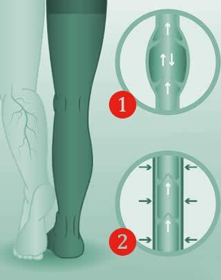 comprando ora nuova collezione nuovo stile e lusso Le calze ed i tutori elastici: il benessere per le tue gambe
